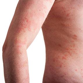 psoriasis sequedad 1