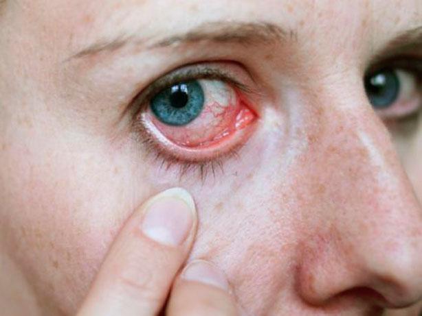 La xeroftalmia y sus causas
